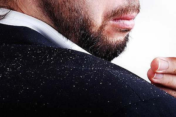 queda de cabelo com caspa dermatites do couro cabeludo