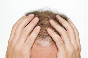 tratamento da alopecia