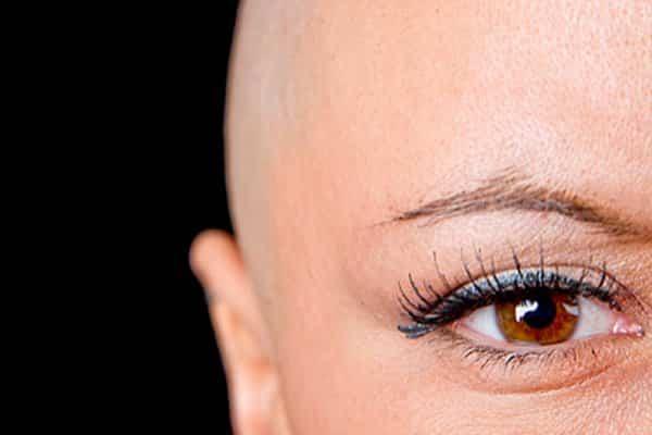 Queda de cabelo por quimioterapia