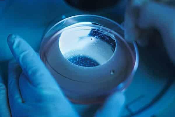 tratamento para calvície com células tronco