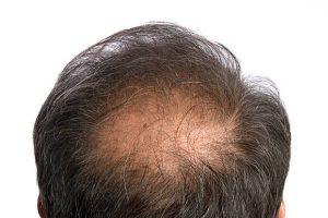 mitos sobre calvicie