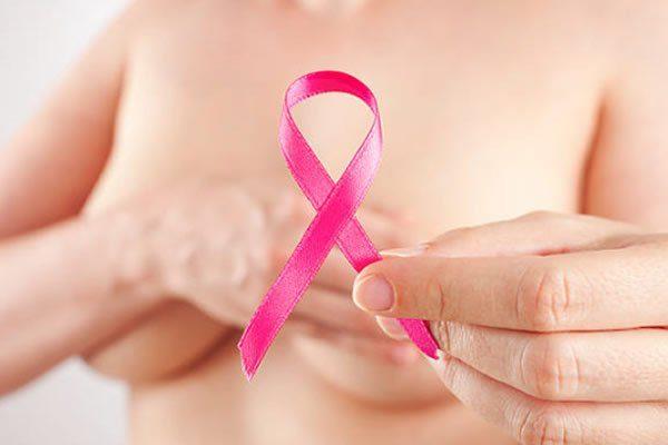 queda de cabelo por hormonioterapia pós câncer de mama
