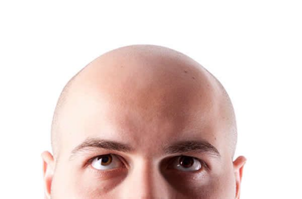 queda de cabelo após transplante capilar