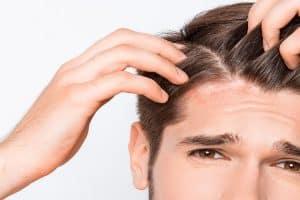 dermatite seborreica no couro cabeludo
