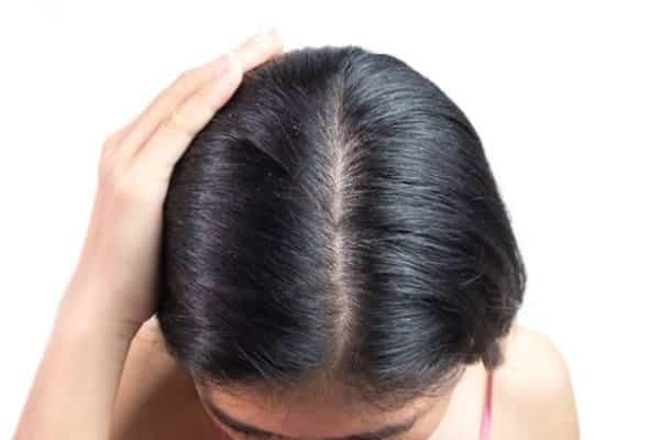 espinhas no couro cabeludo