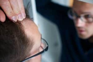 feridas no couro cabeludo