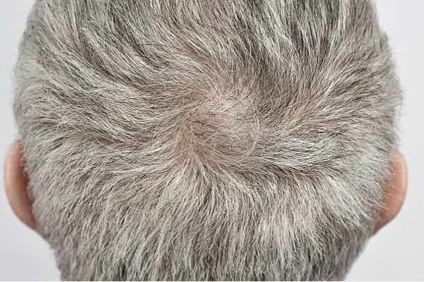 afinamento capilar cabelo afinando