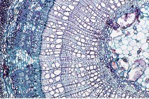 fatores de crescimento capilar mesoterapia intradermoterapia mmp microagulhamento plasma rico em plaquetas prp