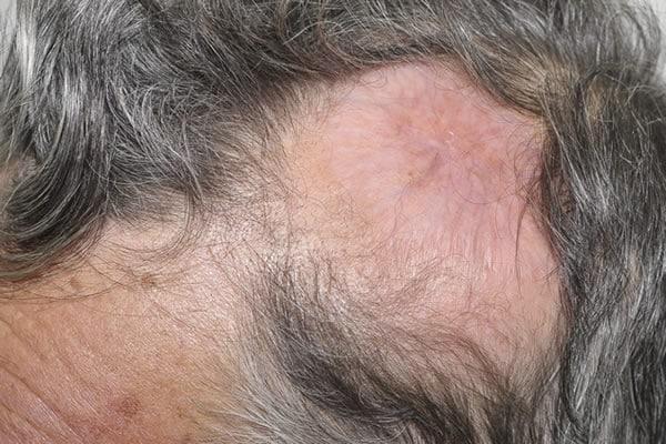 cicatriz no couro cabeludo