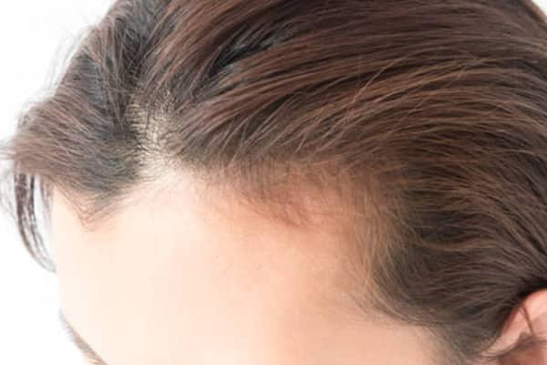 entrada no cabelo feminino normal