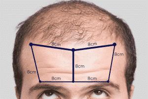 entrada no cabelo masculino medida normal