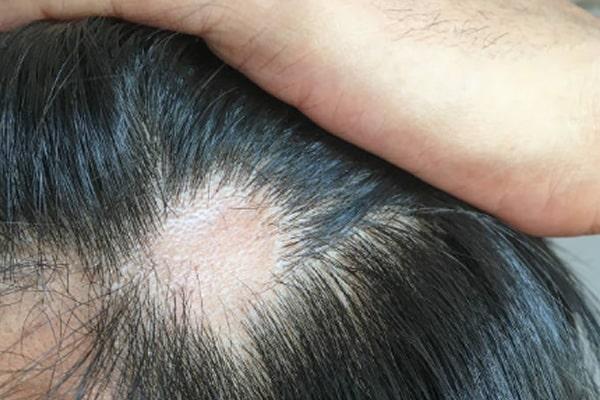 tratamento da alopecia areata com ruxolitinib